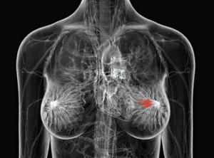 МРТ-молочных-желез